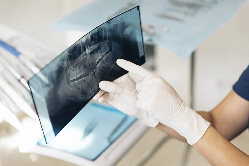 dental-x-ray.jpg